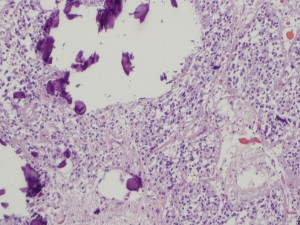 Pineal Gland with Calcifications